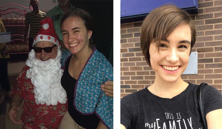 Kiernan Holstein: Before and After
